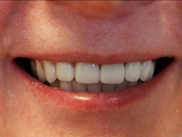 Cirkonium koronák – az esztétika fogászat szolgálatában